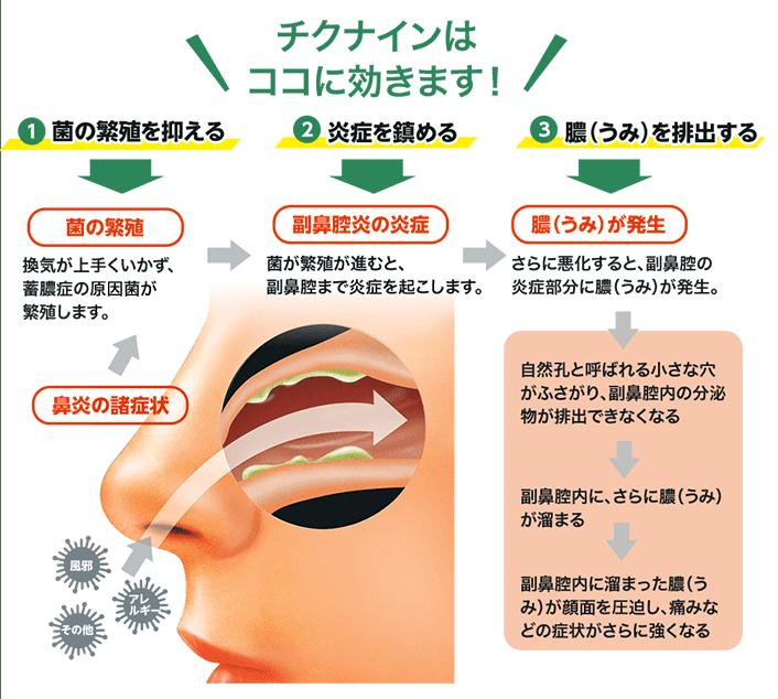 副鼻腔炎のメカニズムのイラスト